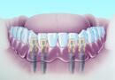 シンコーン義歯