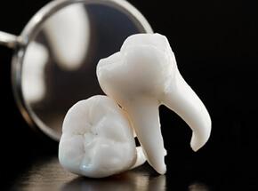 数本の歯を失った方・差し歯が取れてしまった方