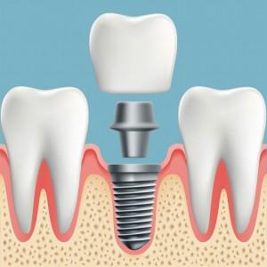 implant_img001