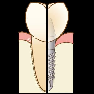 implant-compare005